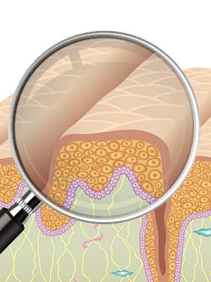 피부 탄력은 왜 떨어지는 걸까?