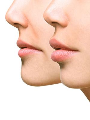 입술을 줄이는 수술이 인기라고?