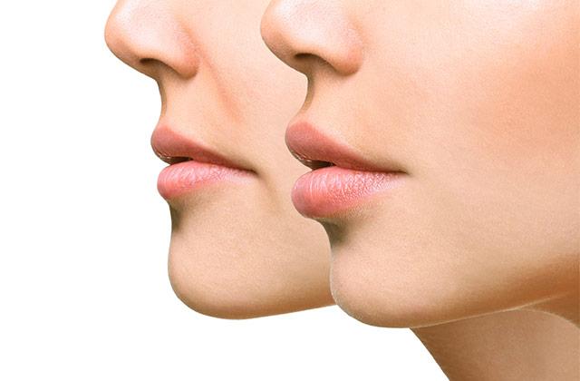 입술을 줄이는 수술이 인기라고?의 썸네일 이미지